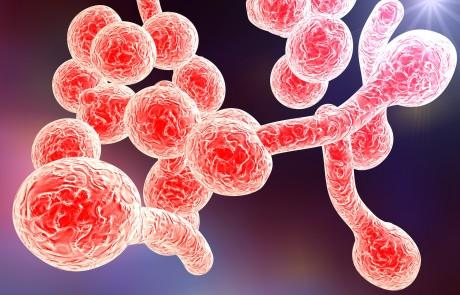 עבודת בוגרים: טיפול ביואורגונומי בקנדידה – שירין דאהר